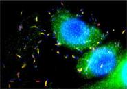 抗李斯特菌特异性抗体—BacTrace Anti-Listeria, genus specific Antibody